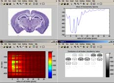 BrainMaps Analyze Screenshot